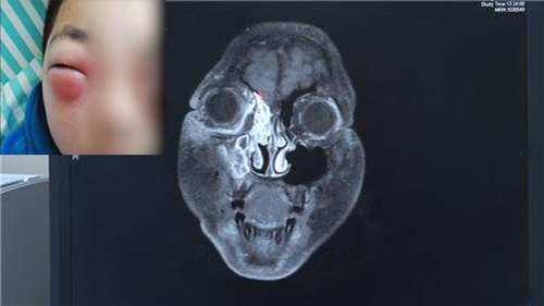 Tình trạng và ảnh chup CT của game thủ Feifei.