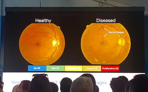 Google AI được đào tạo dựa trên nguồn ảnh võng mạc tại các bệnh viện trong nhiều năm để có thể đưa ra những đánh giá chính xácnguy cơ về mắt của bệnh nhân tiểu đường.