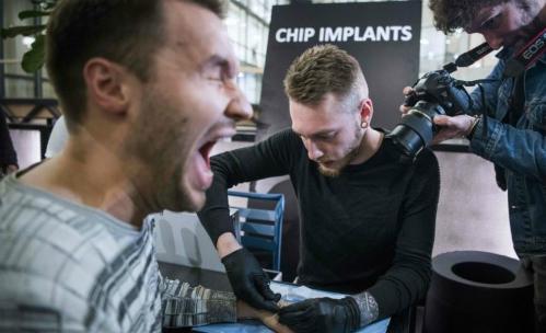 Một người đàn ông đang nhịn đau để cấy ghép chip dưới da tay. Ảnh: AFP
