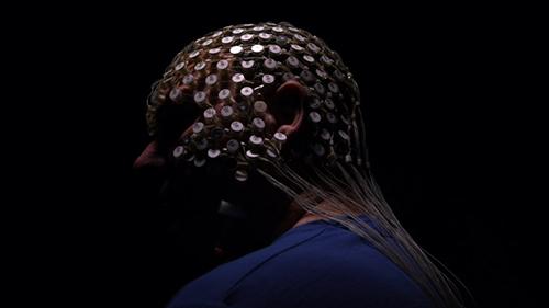 Một bệnh nhân đeo thiết bị đo sóng não ở Sydney. Ảnh: Kate Geraghty